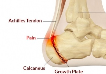 Inflammed heel growth plate